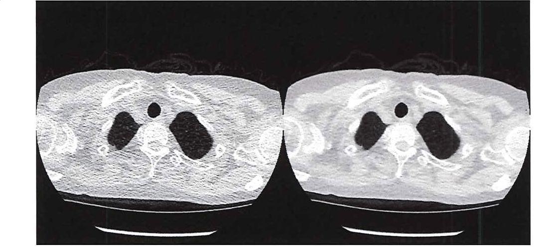 图 1.超低剂量 CT(左侧)与传统 CT(右侧)的图像质量比较。