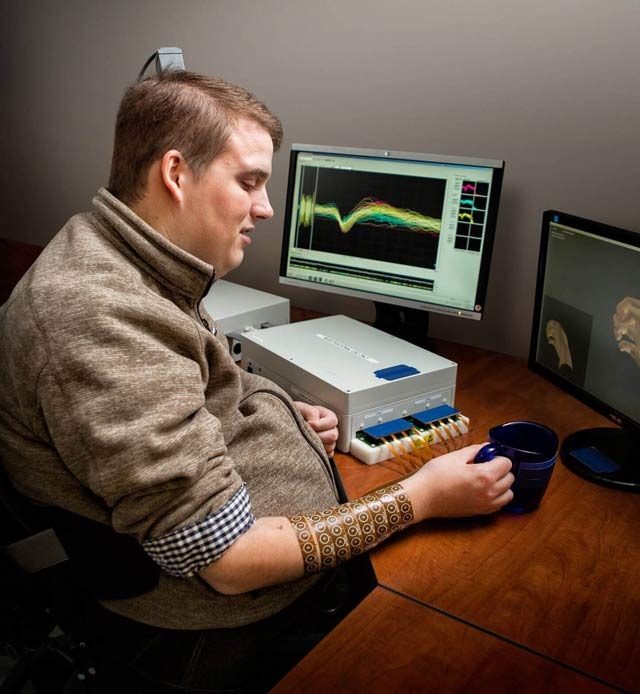 Patient using the Battelle NeuroLife system.