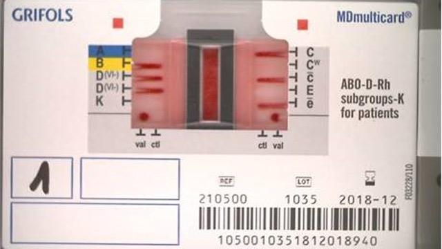 IDNEO 开发嵌入式计算机视觉和机器学习算法以解释血型结果