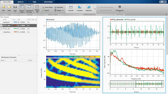 What Is Signal Processing Toolbox? - Video - MATLAB