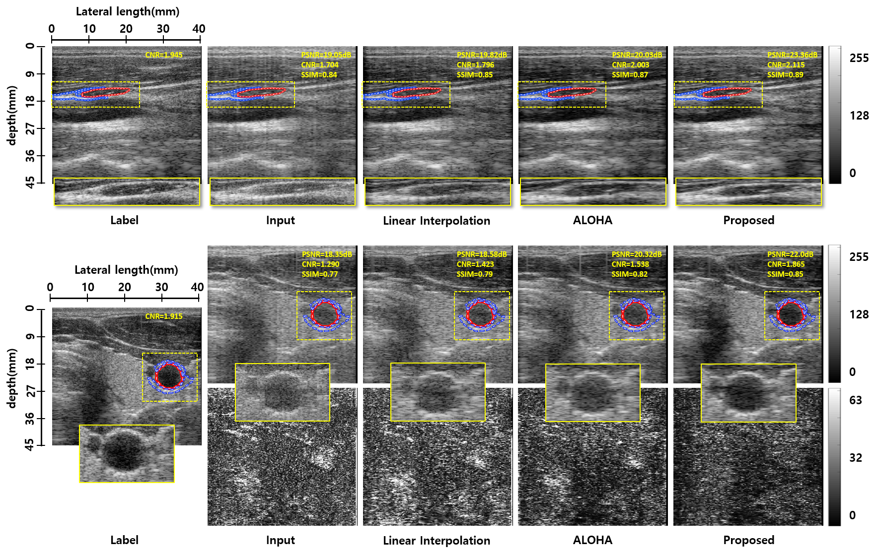Efficient B-mode Ultrasound Image Reconstruction Using CNN