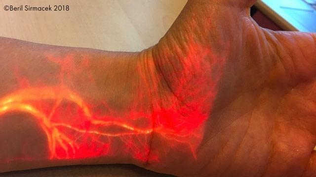 血流的实时增强现实投影。