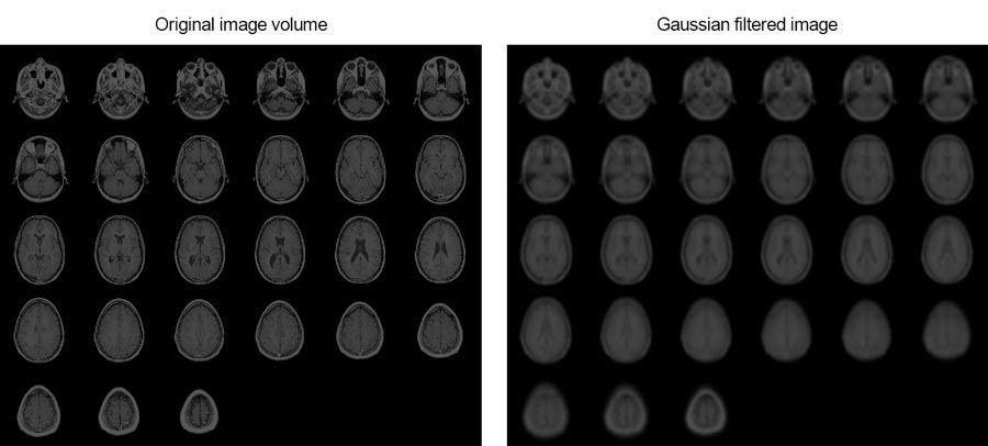 此示例展示如何使用高斯滤波来平滑人脑的 MRI 图像。