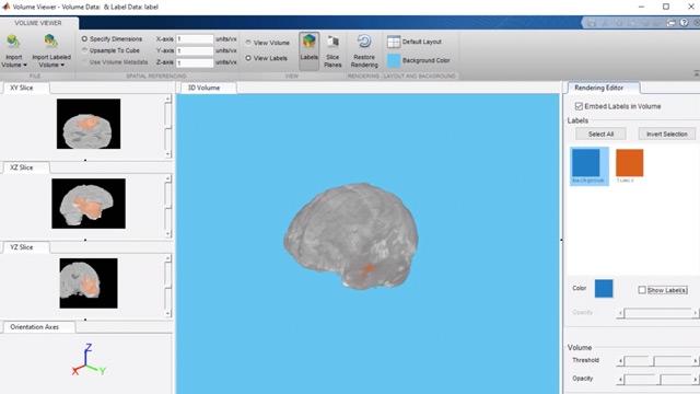 使用 U-Net 神经网络,基于三维医学图像执行脑肿瘤分割。