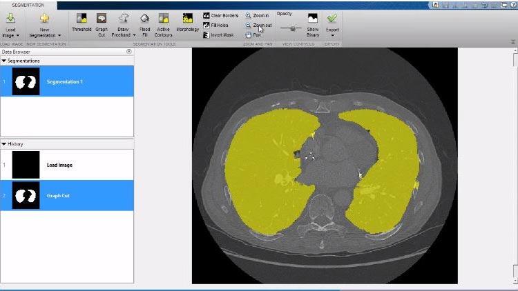 查看 3D 功能,包括 Image Processing Toolbox 中提供的 Volume Viewer 应用程序。
