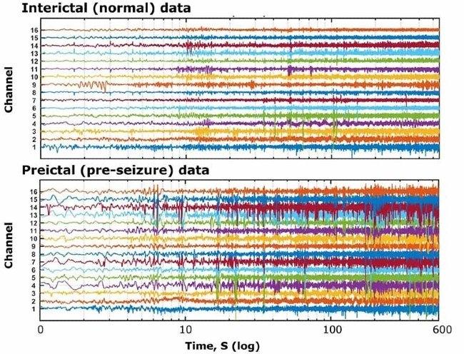 Kaggle 提供的颅内 EEG 数据。