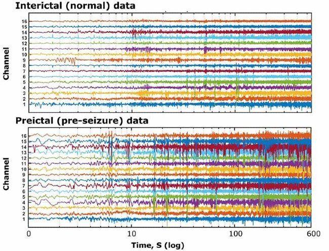 多个信号数据信道,分别对应于癫痫受试者在健康时期与癫痫发作前采集的 EEG 记录。